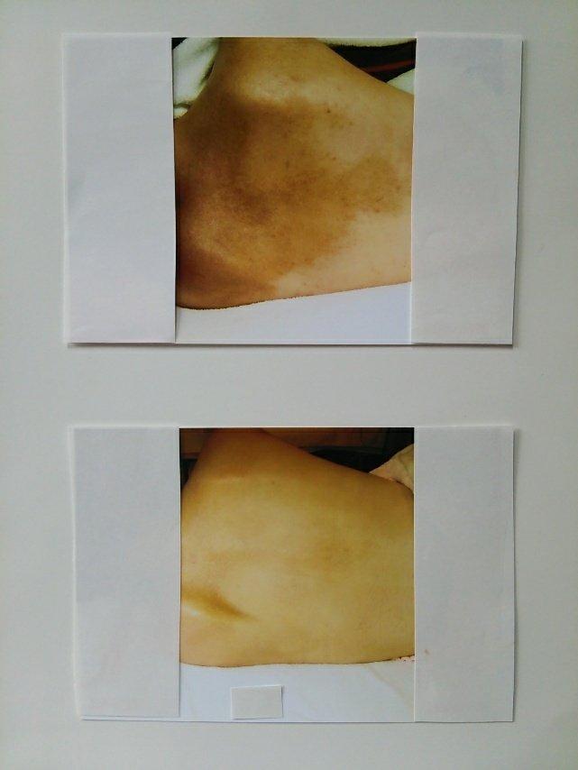 【アトピー・肌トラブル専門】綺麗なお肌を取り戻しましょう⤴️