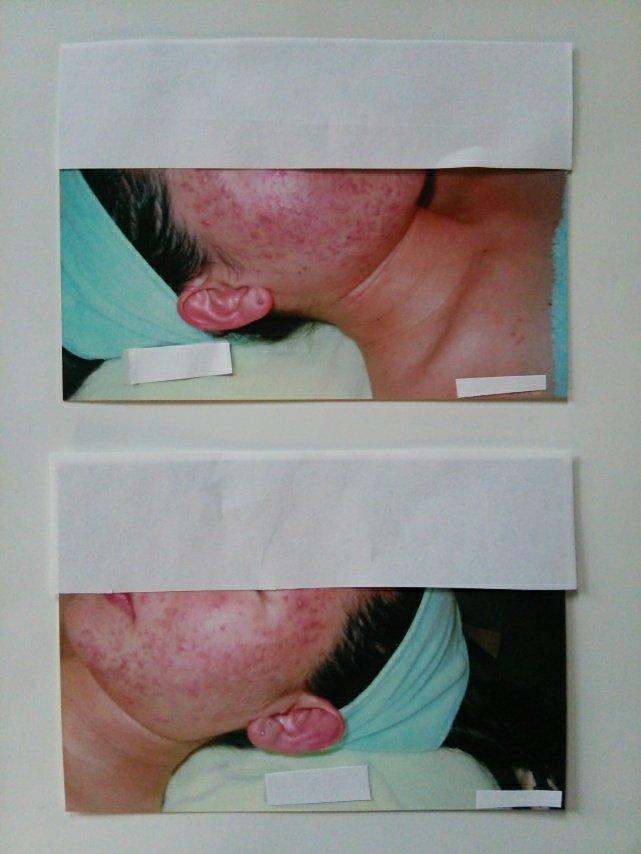 【アトピー・肌トラブル専門】ニキビ肌も綺麗なお肌に解消〜☆
