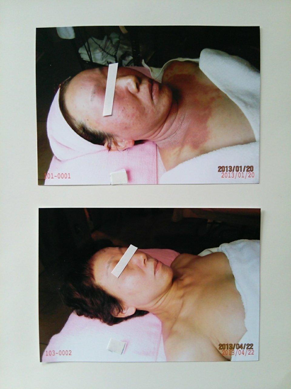 【アトピー・肌トラブル専門サロン】アトピー肌は綺麗になられます~☆