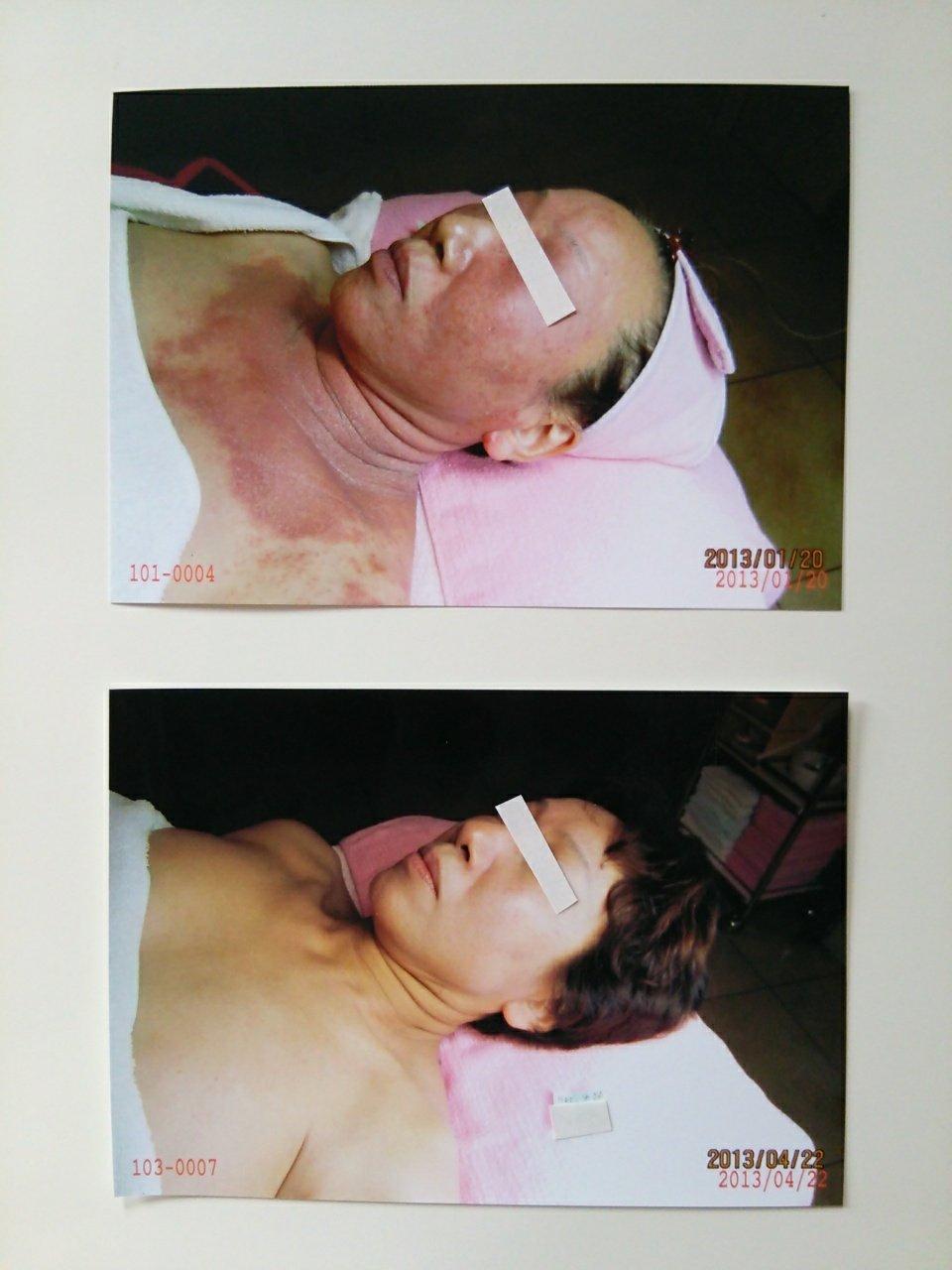 【アトピー・肌トラブル専門】いつも…綺麗なお肌が理想〜☆