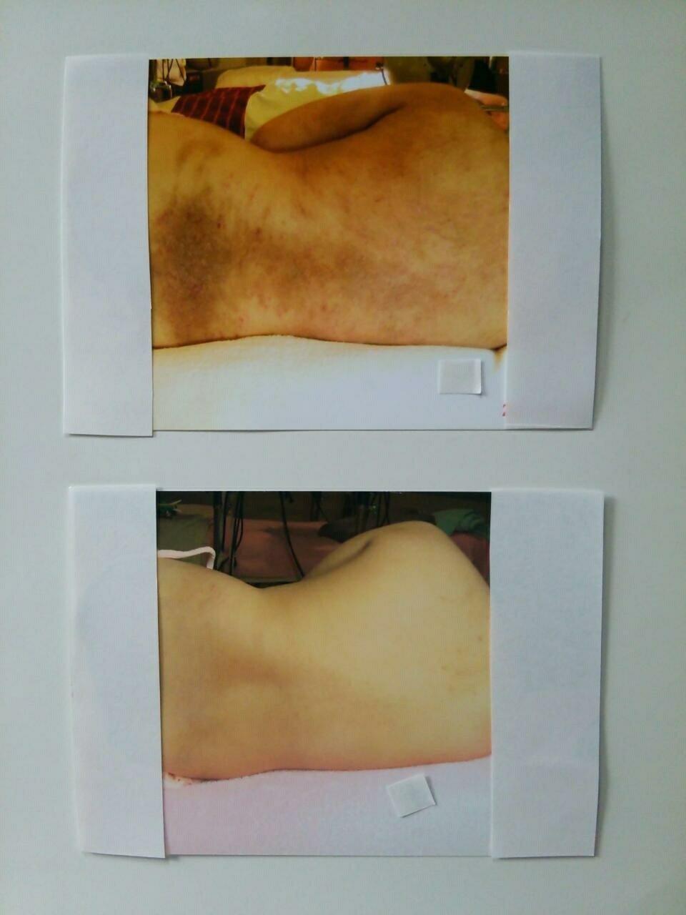 【アトピー・肌トラブル専門】綺麗な美白肌になられます〜☆