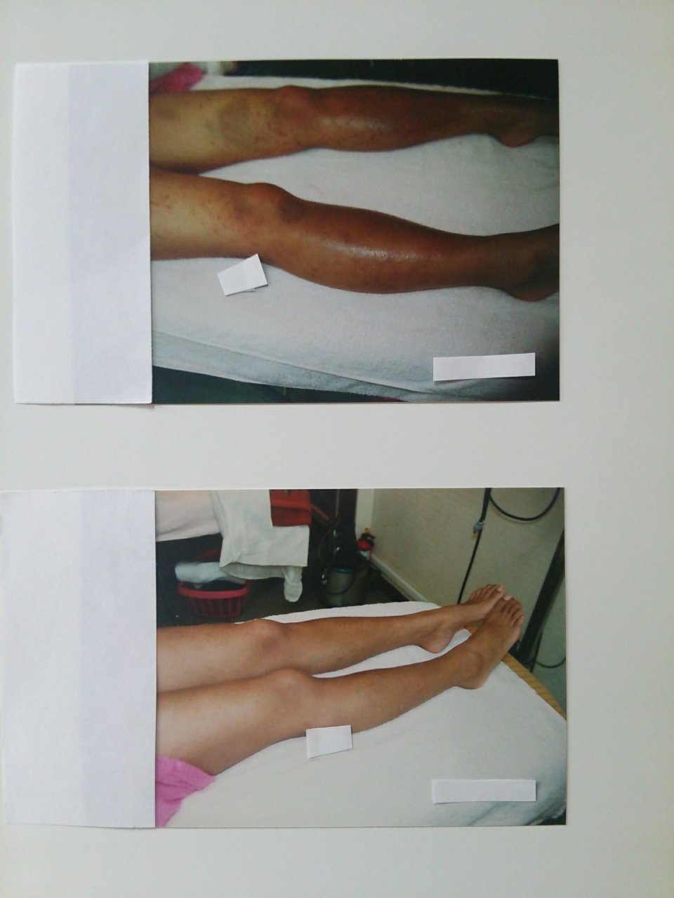 【アトピー・肌トラブル専門】夏疲れのお肌にご注意〜☆