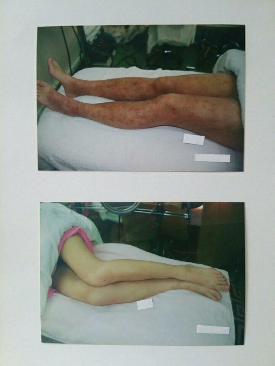 【アトピー・肌トラブル専門】乾燥から〜肌トラブルに…❕